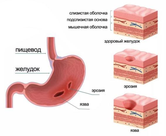 Кровоточащая язва диета
