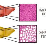 Гипатоз печени