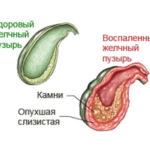 Желчный пузырь воспаление